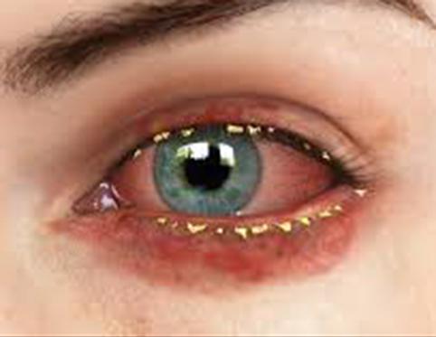 Eye with blepharitis