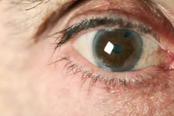 eye with glaucoma image